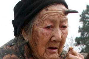 ظاهرة غريبة..بروز قرن طوله 6 سم على جبين معمرة في الصين