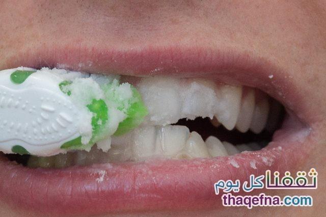 إزالة-الجير-عن-الأسنان،ثقفنا كل يوم