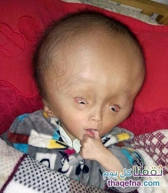 مرض نادر يصيب طفل صيني يجعل رأسه لا يتوقف عن النمو