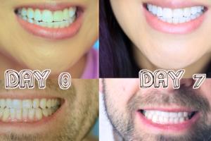 إزالة جير الأسنان والصفار بـ 4 خطوات فقط وجعل بياضها ناصع