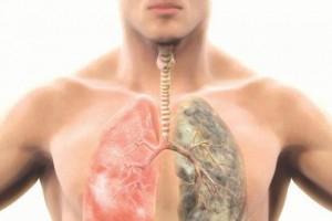 دراسات تحدد أي من المدخنين معرض للإصابة بسرطان الرئة!!
