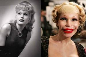 شاهدوا أجمل مشاهير العالم بعد عمليات التجميل الفاشلة… بالصور