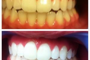 تبيض الأسنان مع وصفة النعناع وعصير الليمون!!