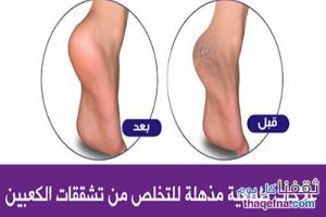 طريقة سهلة لعلاج تشققات القدمين بإستخدام السكر والملح!!