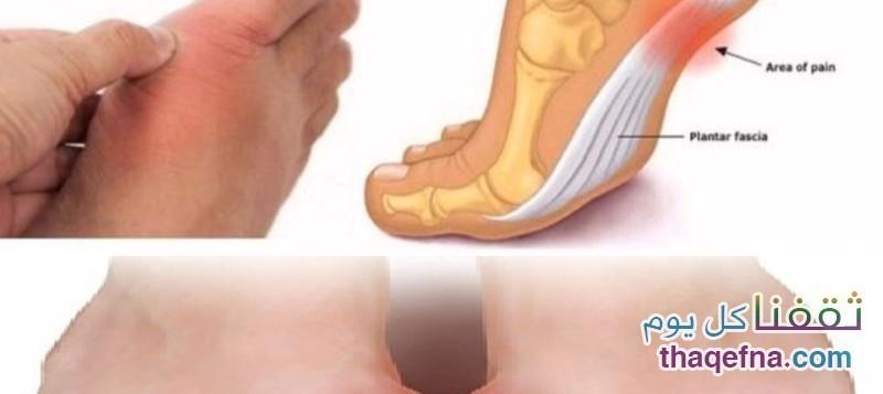 أقدامكم تخبركم عن 6 أمراض منها الغدة الدرقية وضغط الدم وإلتهابات المفاصل وأمراض خطيرة أخرى!!