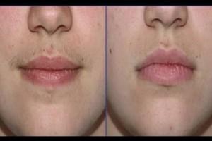 إزالة الشعر عن الوجه نهائياً بإستخدام الملح