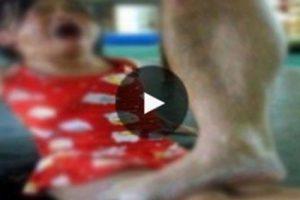 طفلة بريئة يتم تعذيبها يومياً لأسباب عجيبة وبموافقة والدها !! من اجل هذا السبب