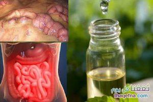 التخلص من الماء الزائد والدهون المتراكمة داخل الجسم والوقاية من السرطان في 3 أيام بالوصفة السحرية