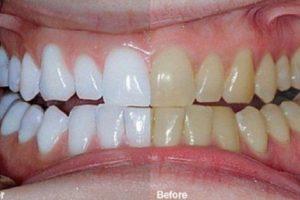 الحصول على أسنان ناصعة البياض بوقت قصير بمزج هذين المكونين .. جربوا بأنفسكم