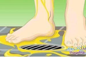 أربعة أسباب تدفعك الى التبول أثناء الإستحمام خاصة في تطهير الجروح وعلاج الفطريات
