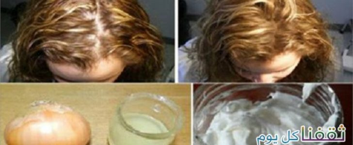 أفضل وصفة من أجل التخلص من تساقط الشعر والحصول على شعر كثيف في أقل من شهر
