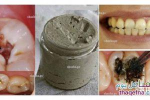 علاج تسوس الأسنان ومشاكل اللثة مع أقوى وصفة منزلية طبيعية مع تبيض الأسنان بشكل طبيعي