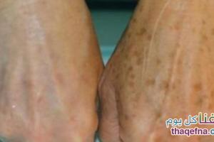أفضل وصفة طبيعية من أجل التخلص من بقع الجلد البنية والحصول على بشرة صافية