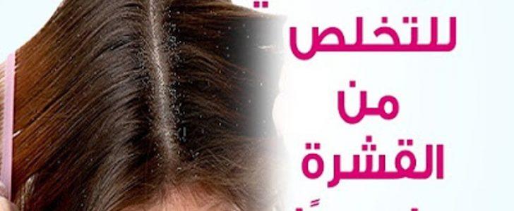 أفضل وصفة طبيعية للتخلص من قشرة الرأس في خلال يوم واحد فقط والنتائج مضمونة