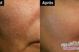 وصفة بسيطة من مكونين بسيطين من أجل التخلص من المسامات الواسعة في الوجه