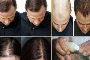 أفضل قناع طبيعي لإنبات الشعر والتخلص من الصلع وبدون آثار جانبية وبنتائج مذهلة !
