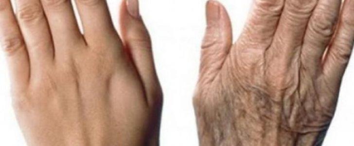 أفضل كريم طبيعي ومنزلي من أجل التخلص من تجاعيد اليدين وآثار الشيخوخة وبنتائج مذهلة !