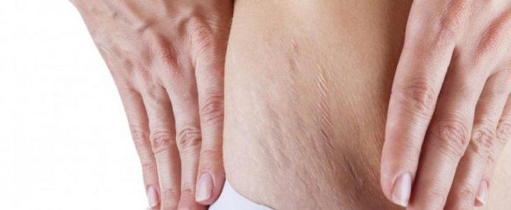 أفضل طريقة طبيعية من أجل التخلص من علامات تمدد الجلد وتشققات منطقة البطن
