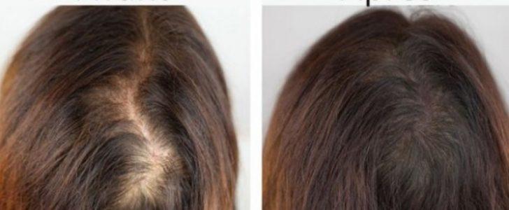 قناع طبيعي يساعد في تقوية الشعر من الجذور وإعادة إنبات الشعر والحصول على شعر كثيف