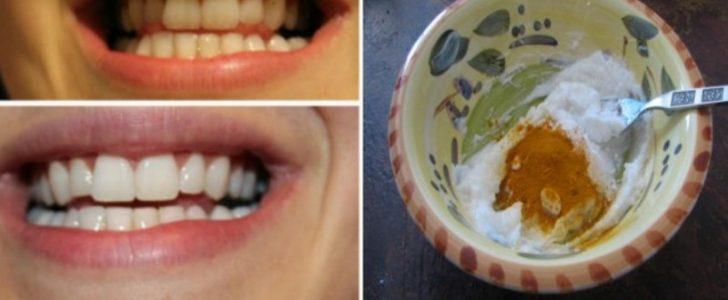 غسول ومبيض أسنان طبيعي من مكونات منزلية والنتائج سريعة ومذهلة !