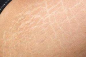 علاج الخطوط البيضاء …. الناتجة عن تمدد الجلد خاصة عند النساء  واسباب ظهورها