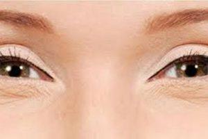 علاج تجاعيد الوجه وإزالة البقع البنية عن البشرة بوصفة طبيعية وبدون آثار جانبية !