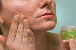 أفضل العلاجات الطبيعية للتخلص من حب الشباب والحصول على بشرة صافية !
