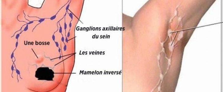 إزالة السموم من الإبطين وتنقية الجسم ومكافحة سرطان الثدي بوصفة طبيعية وبسيطة !
