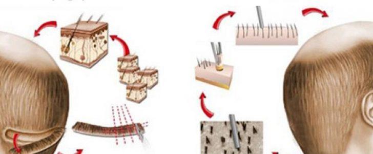 أحدث تقنيات زراعة الشعر تقنية الشريحة FUT و تقنية الاقتطاف FUE !