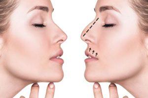 موقع الدكتور نزار فقيه لعمليات التجميل الأنف والأذن