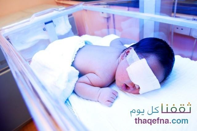 اليرقان طبيعي إصفرار ما بعد الولادة
